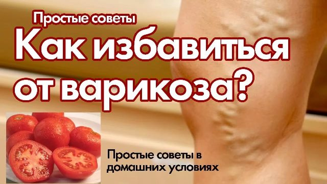 Лучшие народные рецепты от варикоза — самые эффективные народные средства!